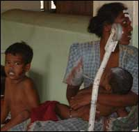 Children mostly affected also in Jaffna-District