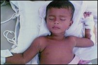 Usha Yogaraja, the two-years-old child in Batticaloa Hospital