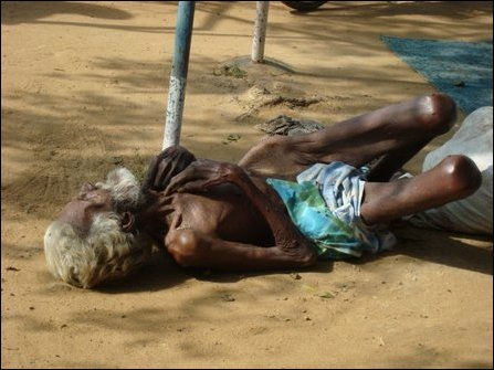 Elderly civilian struggling with malnutrition