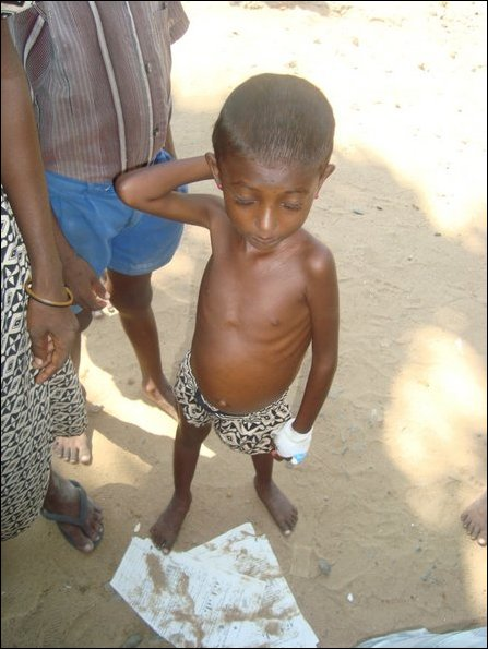 Malnutrition observed in Vanni